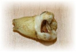 Lennon's Molar